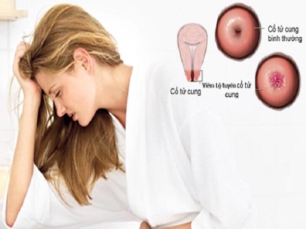 các bệnh phụ khoa ở nữ mà bạn cần biết