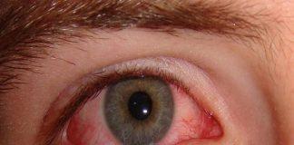 bệnh đau mắt đỏ