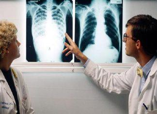 hình ảnh chụp bị bệnh lao phổi