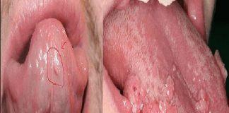 Biểu hiện của bệnh sùi mào gà ở miệng