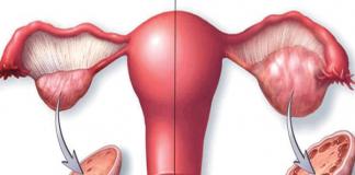 Hội chứng đa nang buồng trứng là gì?