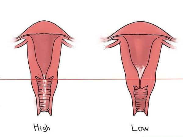 Cổ tử cung ngắn là như thế nào?