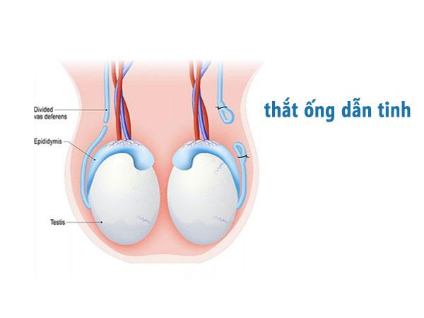 Thắt ống dẫn tinh là gì?